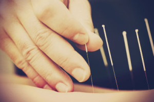 acupuncture-fertility-portland